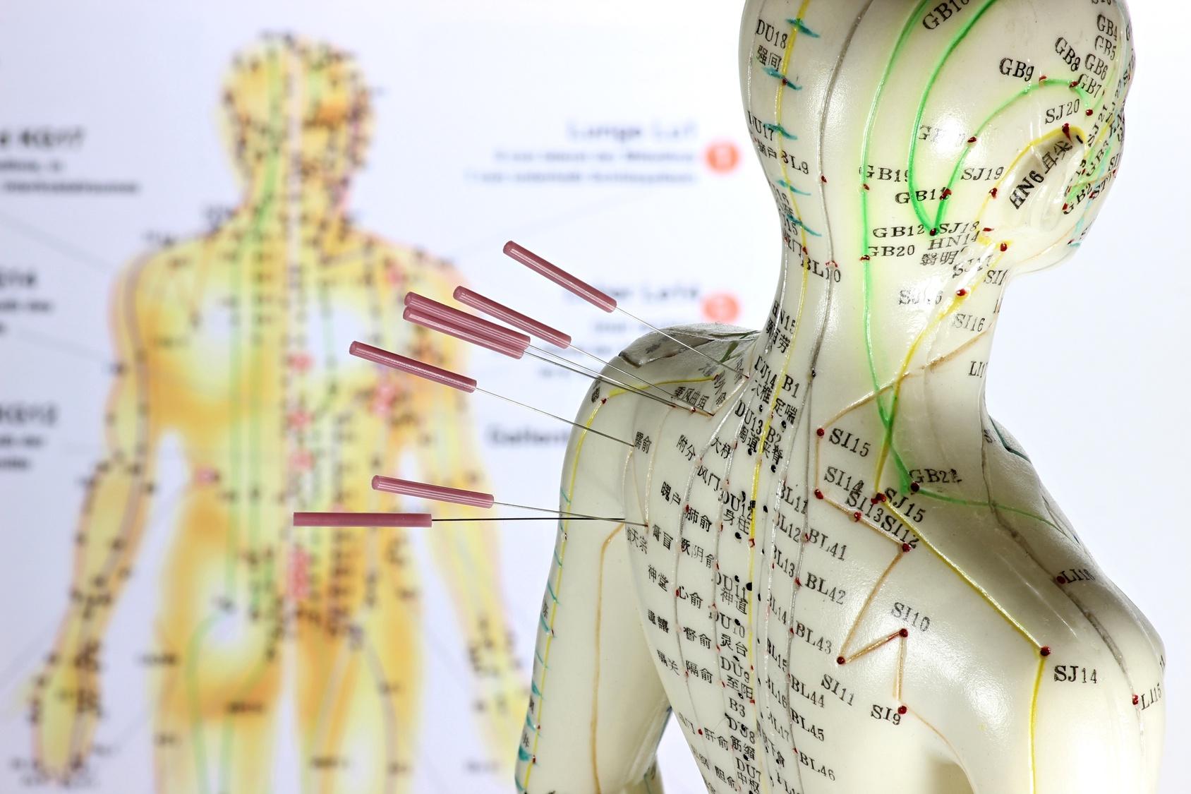 Wie Wirkt Akupunktur Therapie Tcm München Schwabing