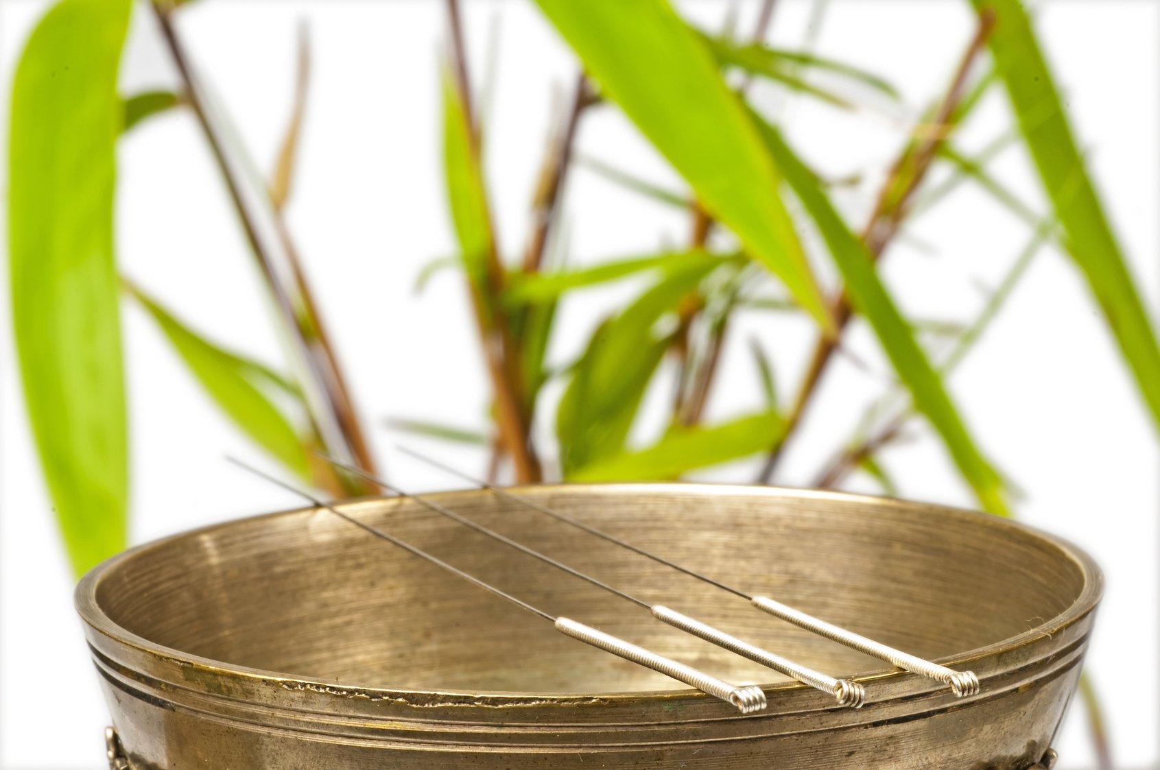Akupunktur, TCM